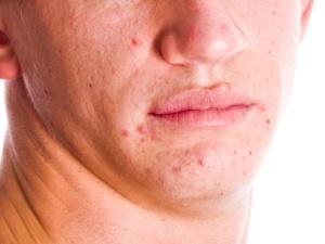 Adolescente, espinha, acne, 300 225