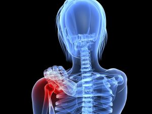 Esqueleto reumatismo