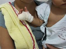 SP apura caso de bebê amputado em hospital