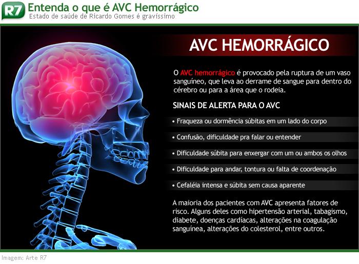 avc info