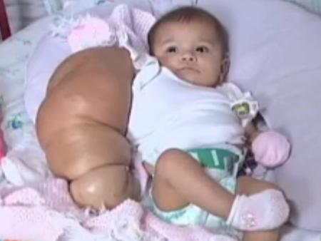 Bebê - gigante