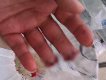 Mulher tem dedos da mão mutilados em abordagem policial em Valparaíso de Goiás