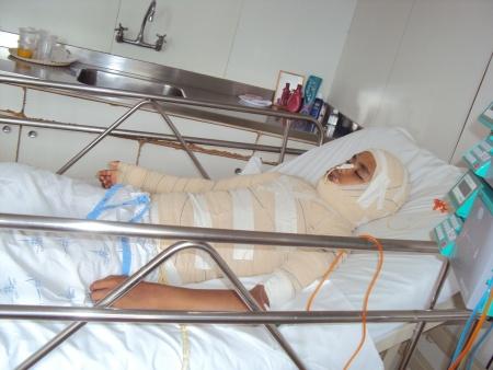 Menino de 13 anos tem corpo queimado no lixão da Estrutural