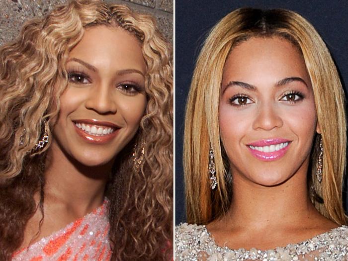 antes e depois celebridades transformam os dentes depois da fama