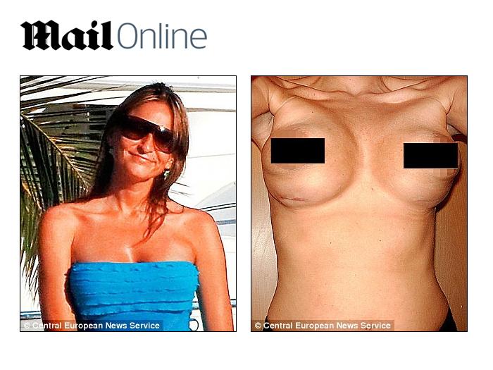 Executar a cirurgia plástica em um peito o preço