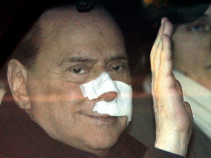 """O chefe de governo italiano, de 73 anos, sofreu """"contusões importantes no rosto, com cortes interno e externo no lábio superior, quebrou dois dentes"""" e tev..."""