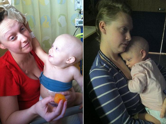 Bebê câncer