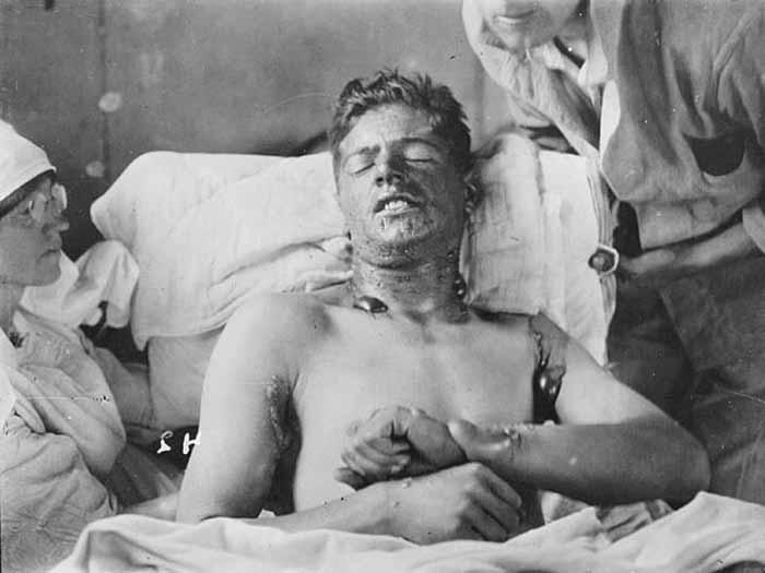 Armas proibidas: um legado de dor e sofrimento - Foto 6 ...