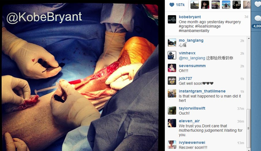 Kobe Bryant posta foto impressionante de sua cirurgia - Esportes ...