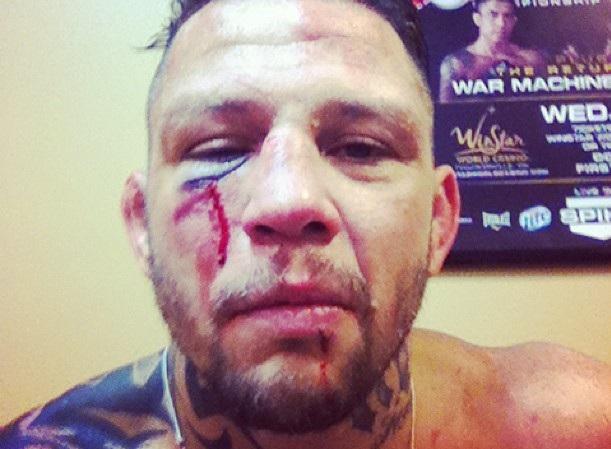 Brasileiro veterano do MMA se aposenta após derrota - Mais ...